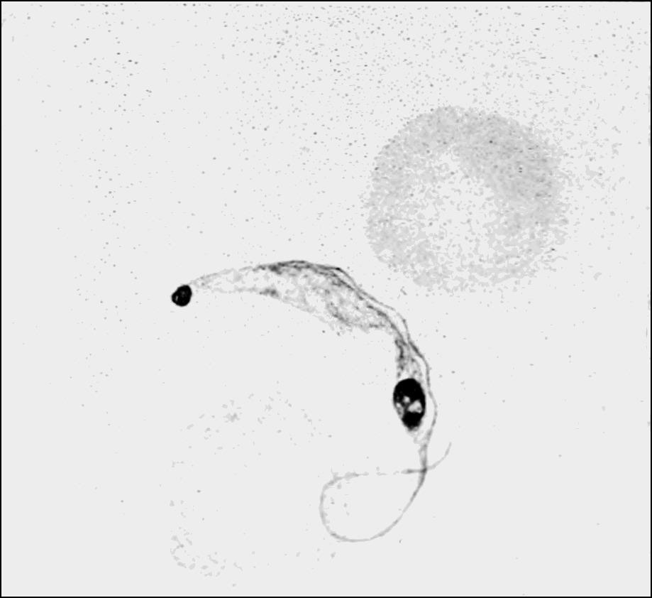 Image of Trypanosoma lewisi