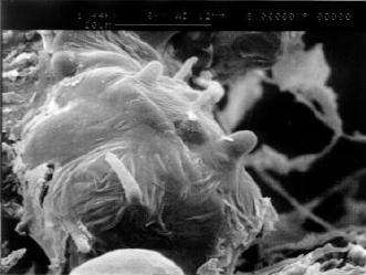 Image of <i>Macrophomina phaseolina</i> (Tassi) Goid. 1947