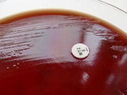 Image of <i>Bacteroides fragilis</i>