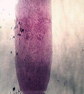 Image of Double-pored Dog Tapeworm
