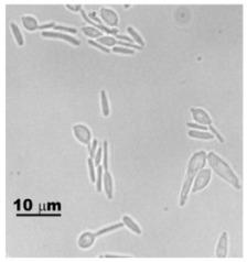 Image of <i>Sporothrix schenckii</i> Hektoen & C. F. Perkins 1900
