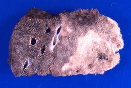 Image of Legionella