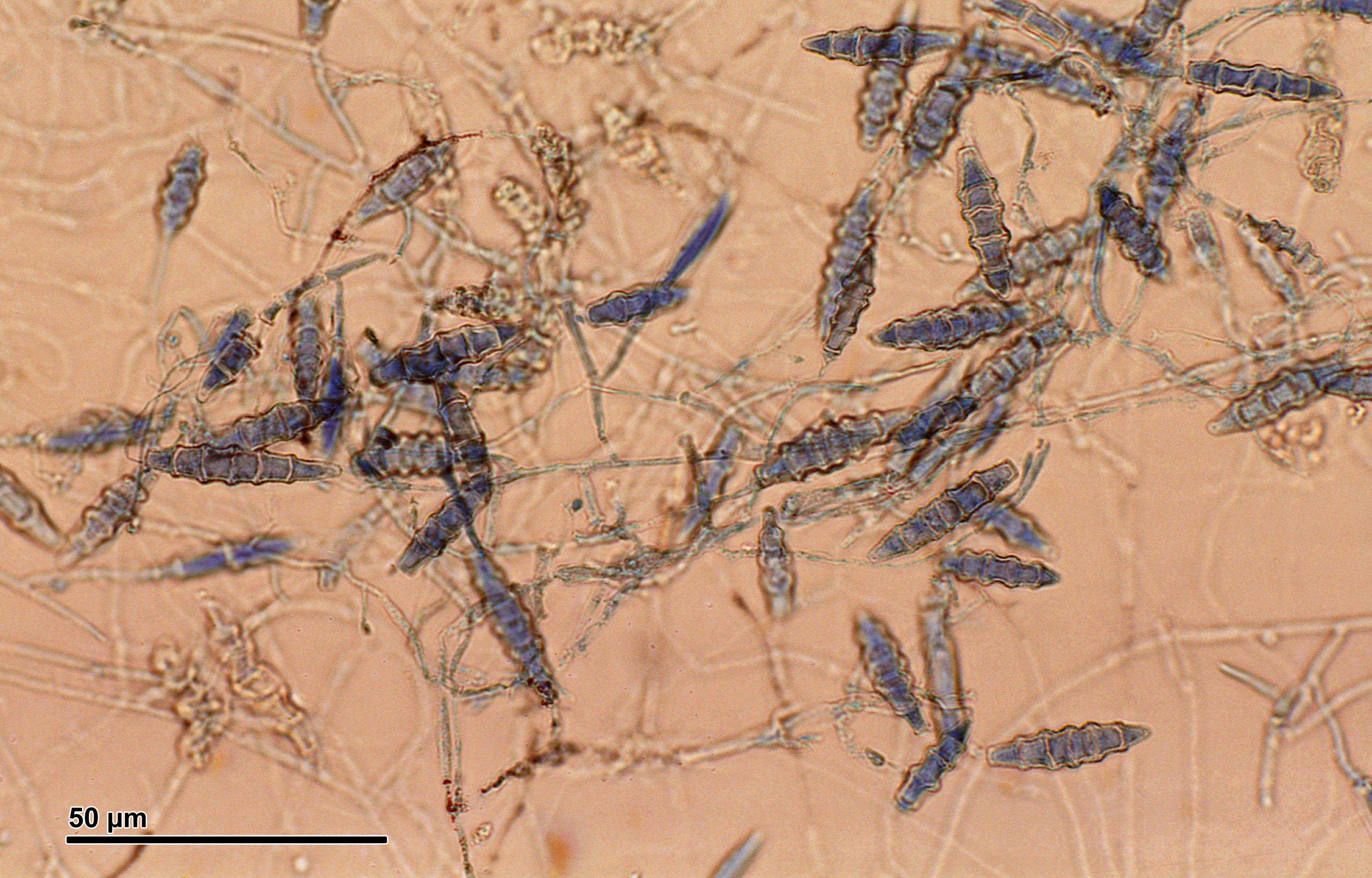 Слика од <i>Microsporum gypseum</i> (E. Bodin) Guiart & Grigoraki 1928