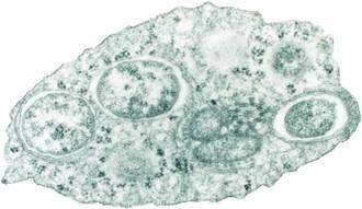 Image of Wolbachia
