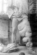 Image of <i>Wuchereria bancrofti</i> (Cobbold 1877)