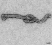 Image of Bourbon virus