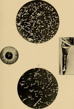 Image of Kommabacillus