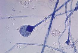 Image of Mucoraceae