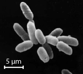 Image of Salt-loving Archaebacteria