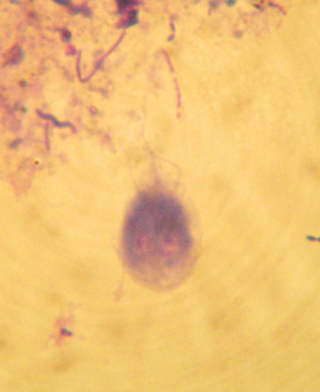 Image of Giardia