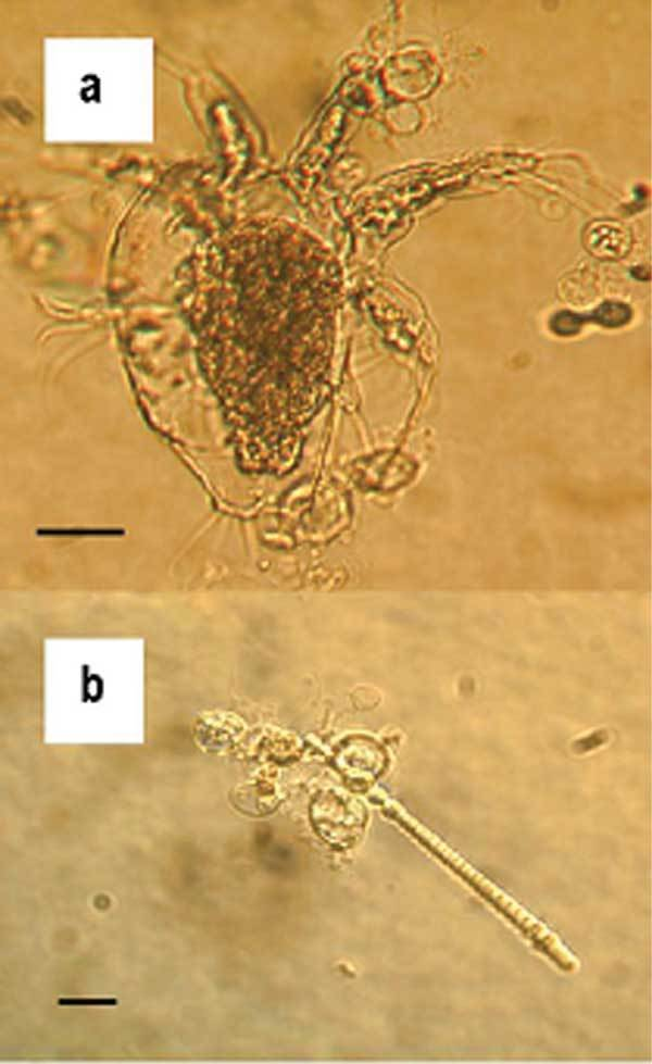 Image of Chytrid fungus