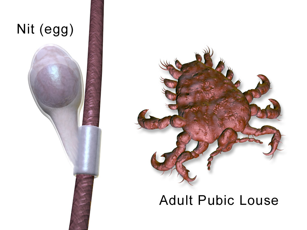 Image of lice