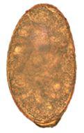 Image of Nanophyetus salmincola