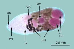 Image of Metagonimiasis