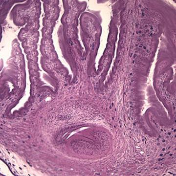 Image of pork tapeworm