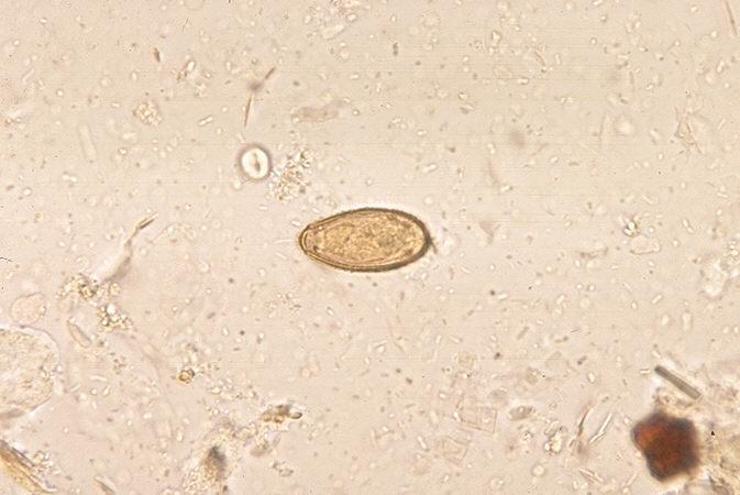 Image of Chinese liver fluke
