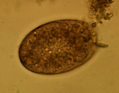 Image of <i>Fasciolopsis buski</i> (Lankaster 1857) Lankaster 1857