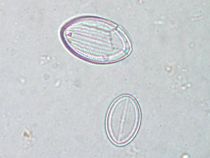 Image of Cocconeis