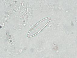Image of Nitzschia