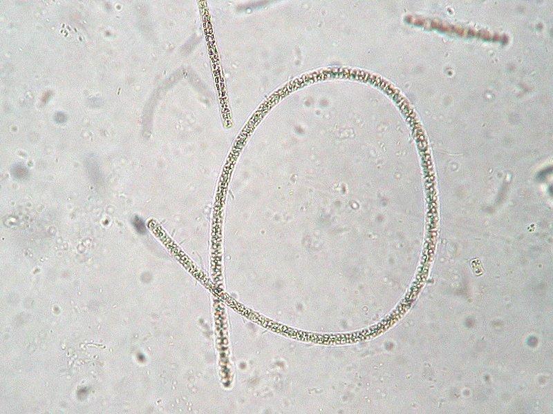 Image of Planktothrix