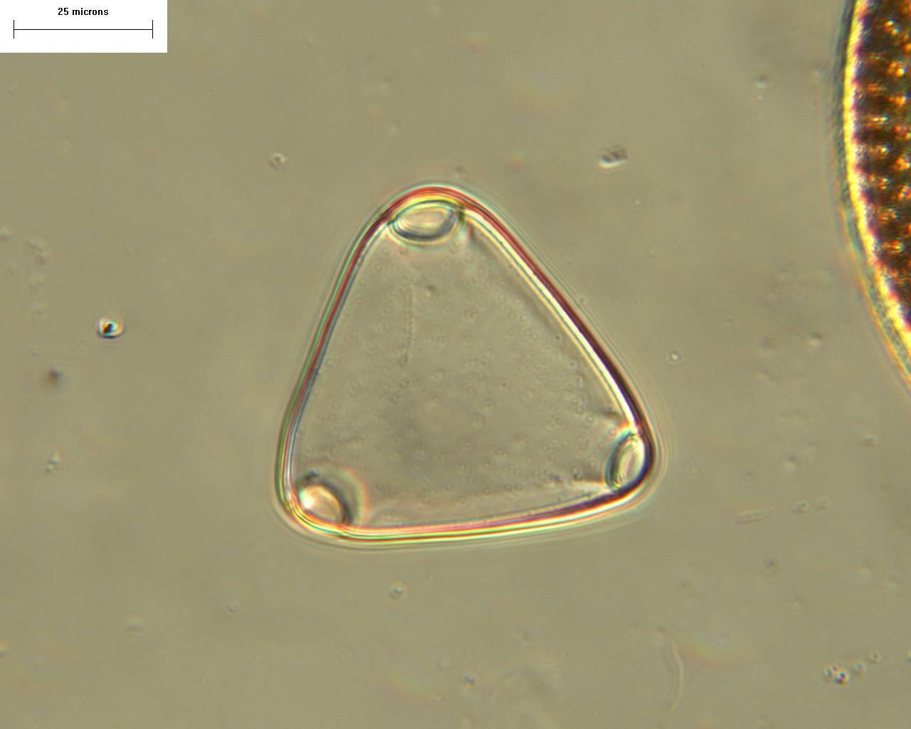 Image of <i>Biddulphia rudis</i> A. Mann