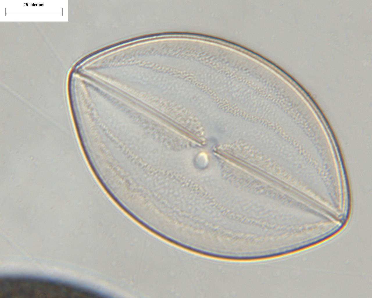 Image of <i>Navicula cyclops</i> A. Mann