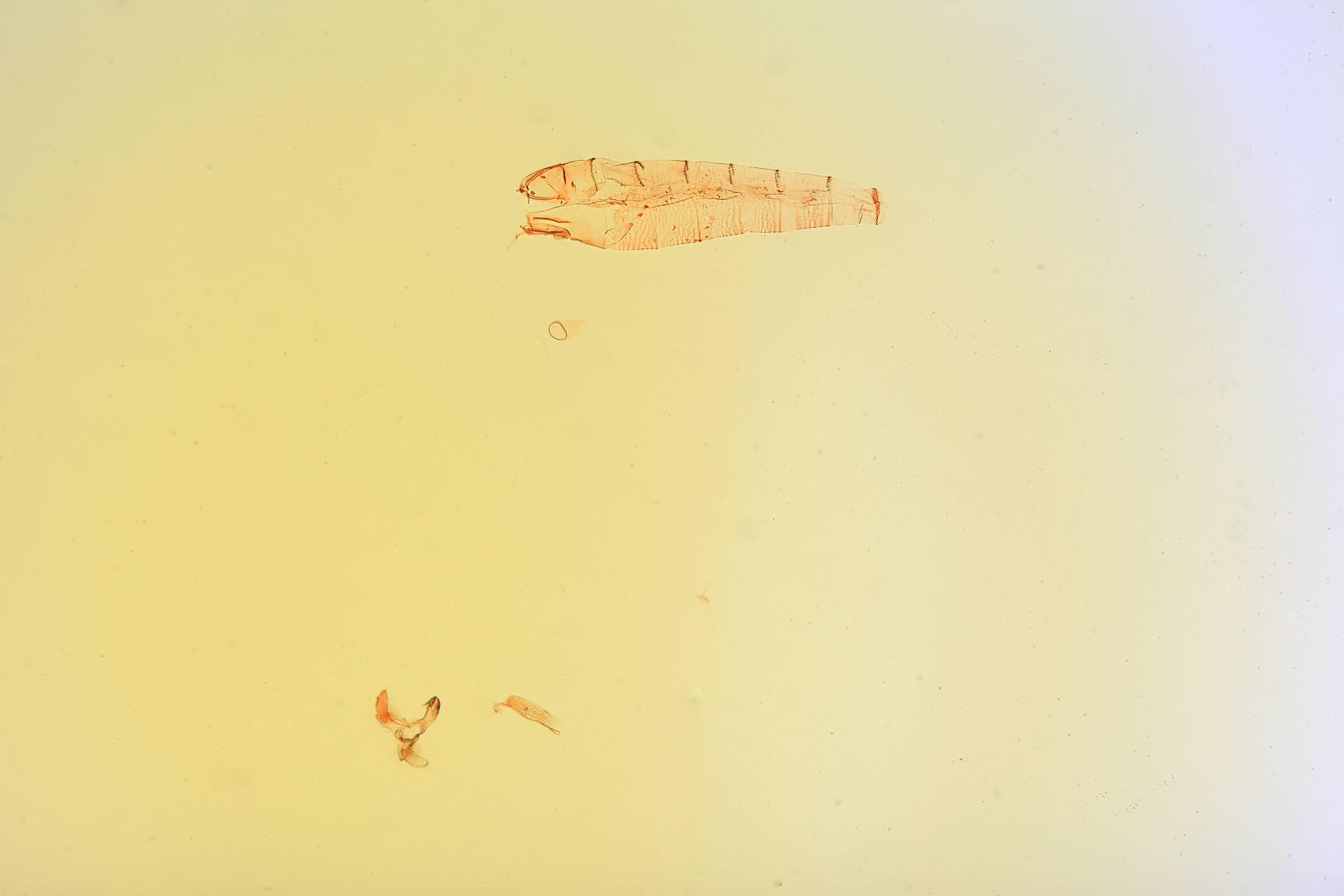 Image of <i>Stathmopoda argyrosticha</i> Clarke 1971