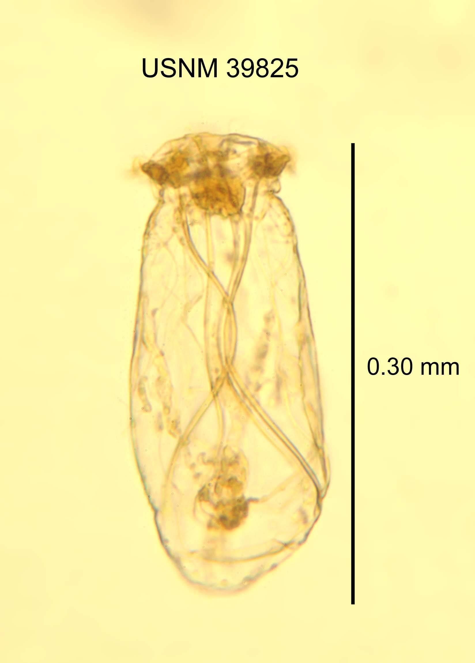 Image of <i>Asplanchna priodonta</i> Gosse 1850