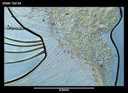 Image of <i>Archasterope antarctica</i> (Kornicker 1975)