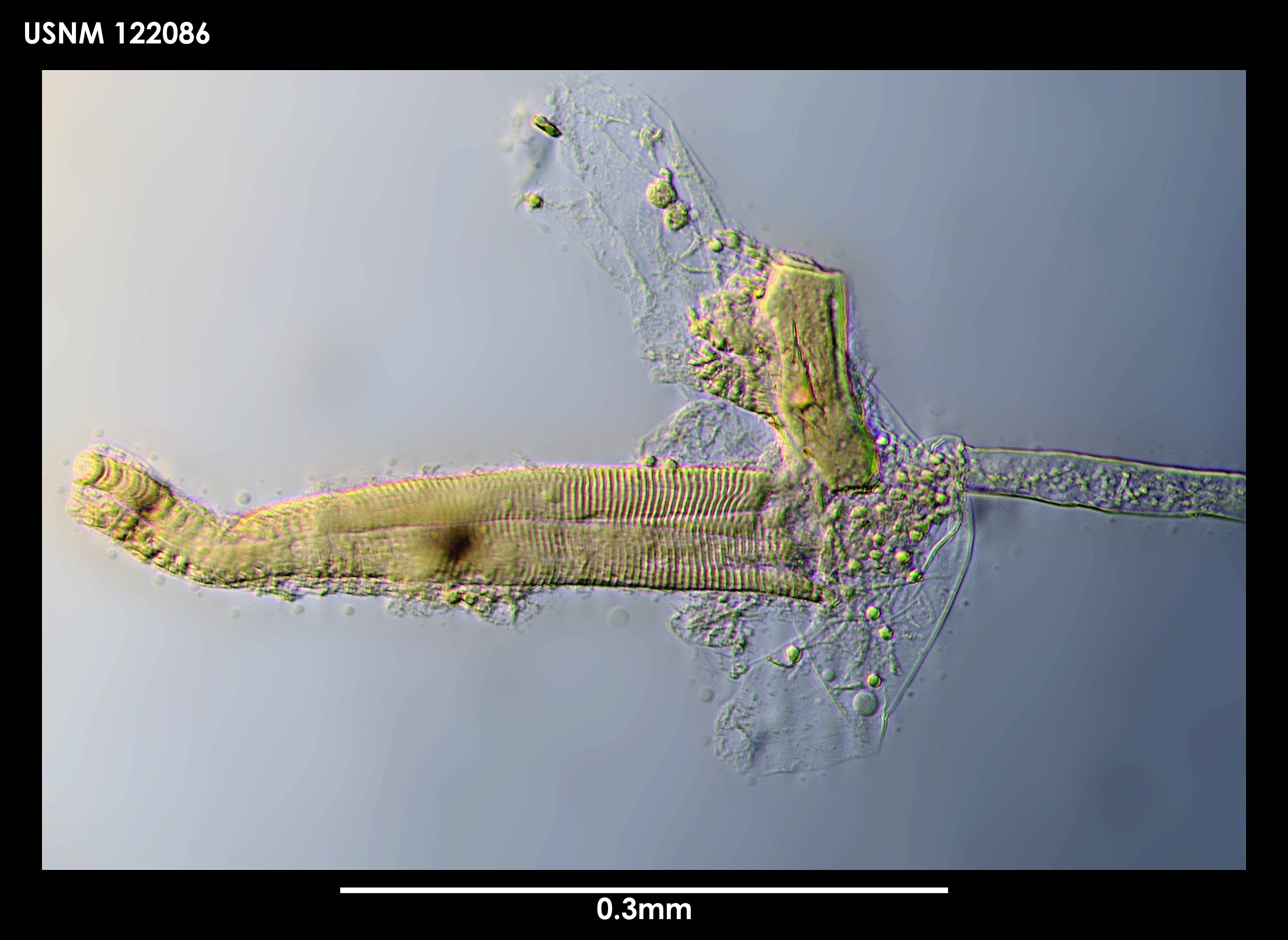 Image of <i>Spinacopia menziesi</i> Kornicker 1969
