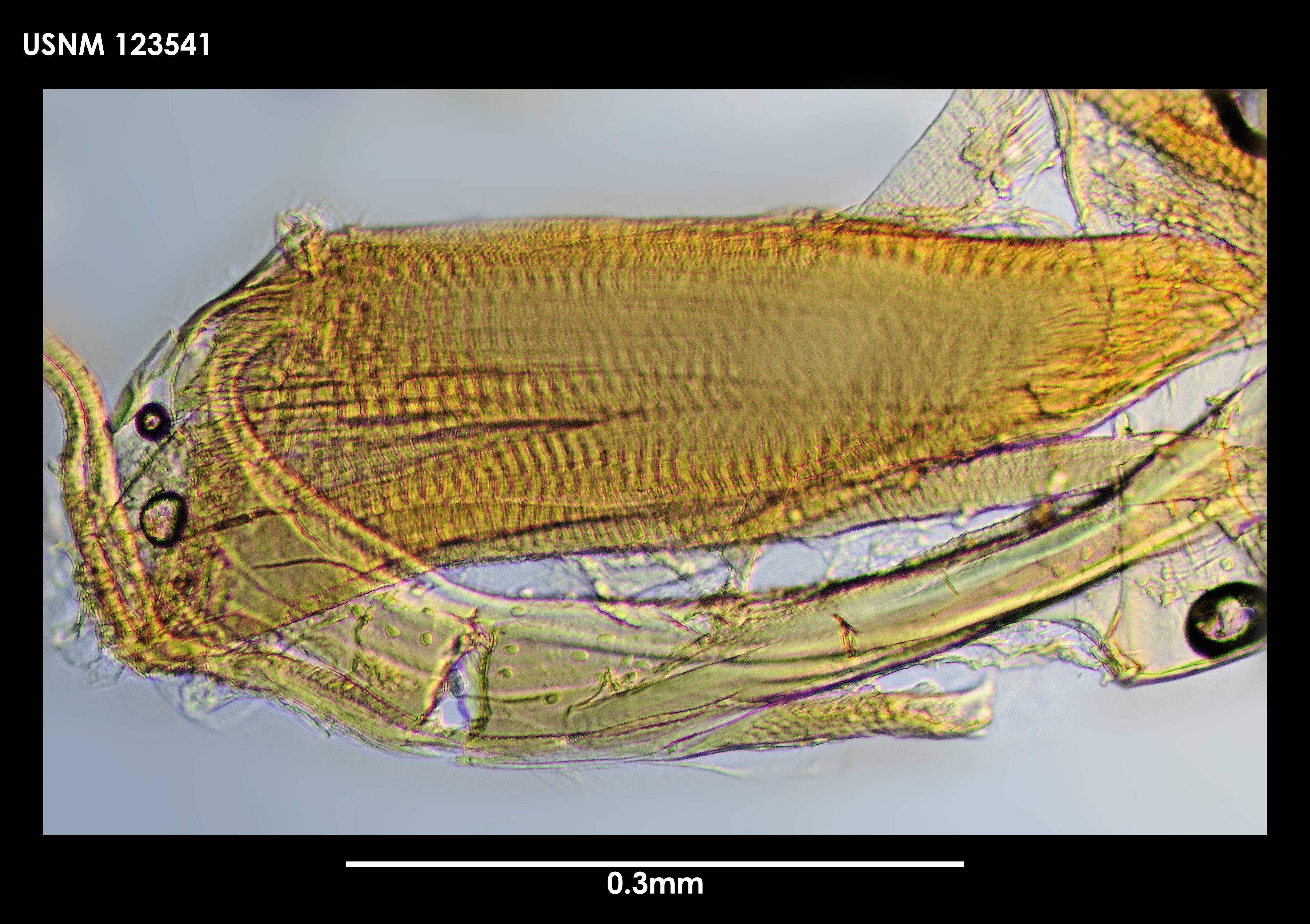 Image of <i>Spinacopia octo</i> Kornicker 1970