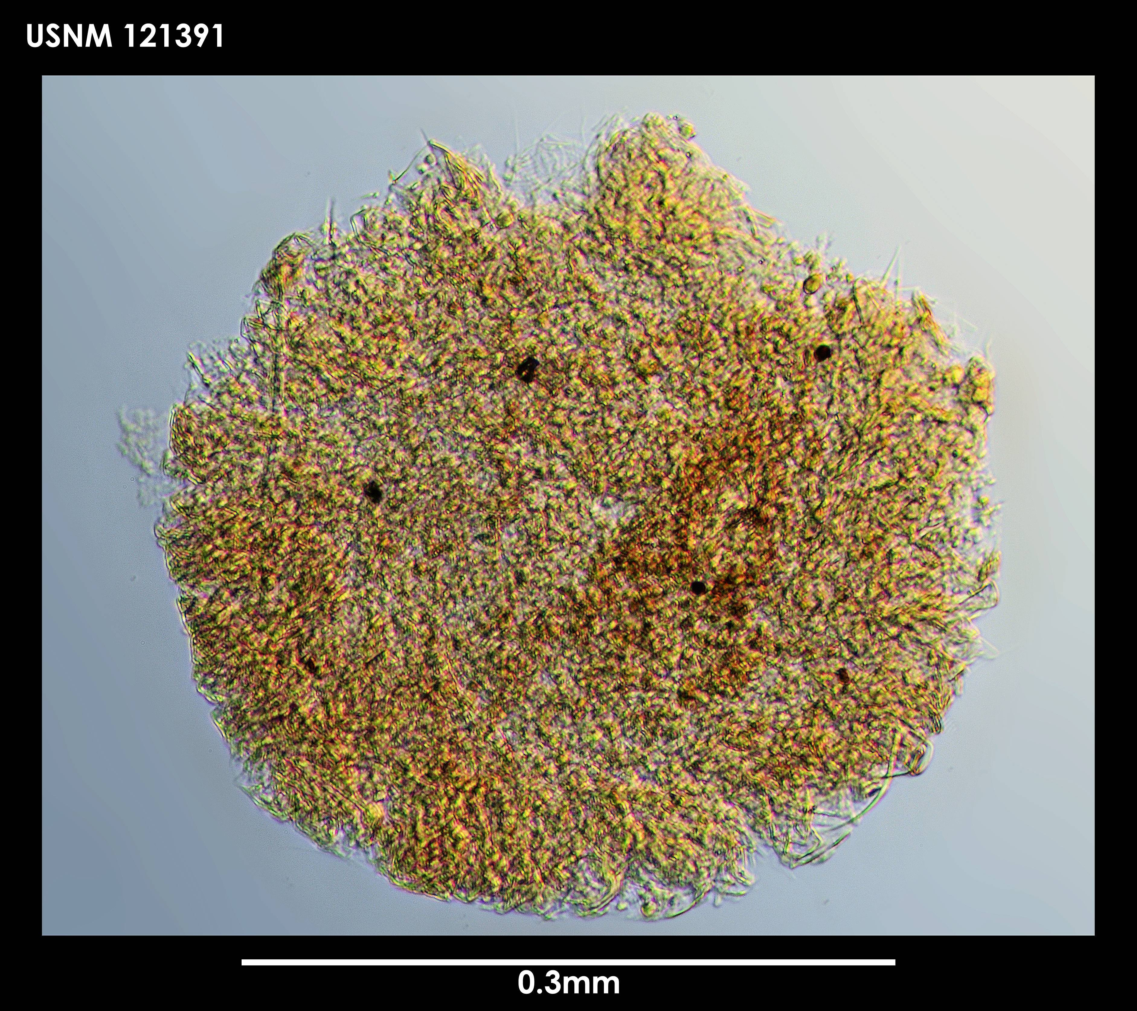 Image of <i>Bythocypris</i> (<i>Bythotriangularia</i>) <i>eltanina</i> (Maddocks 1969)