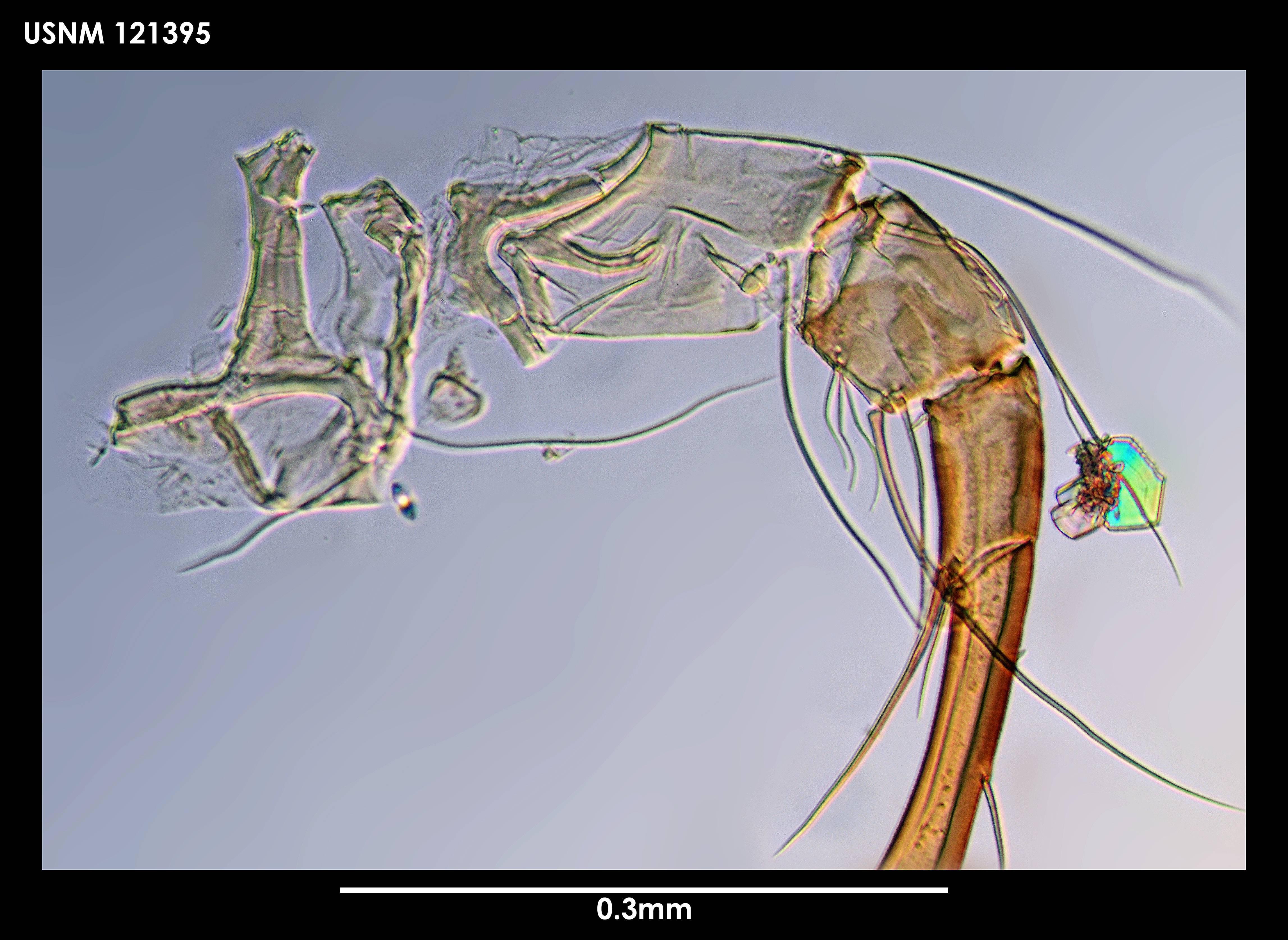 Image of <i>Bythocypris</i> (<i>Bythotriangularia</i>) <i>spiriscutica</i> (Maddocks 1969)