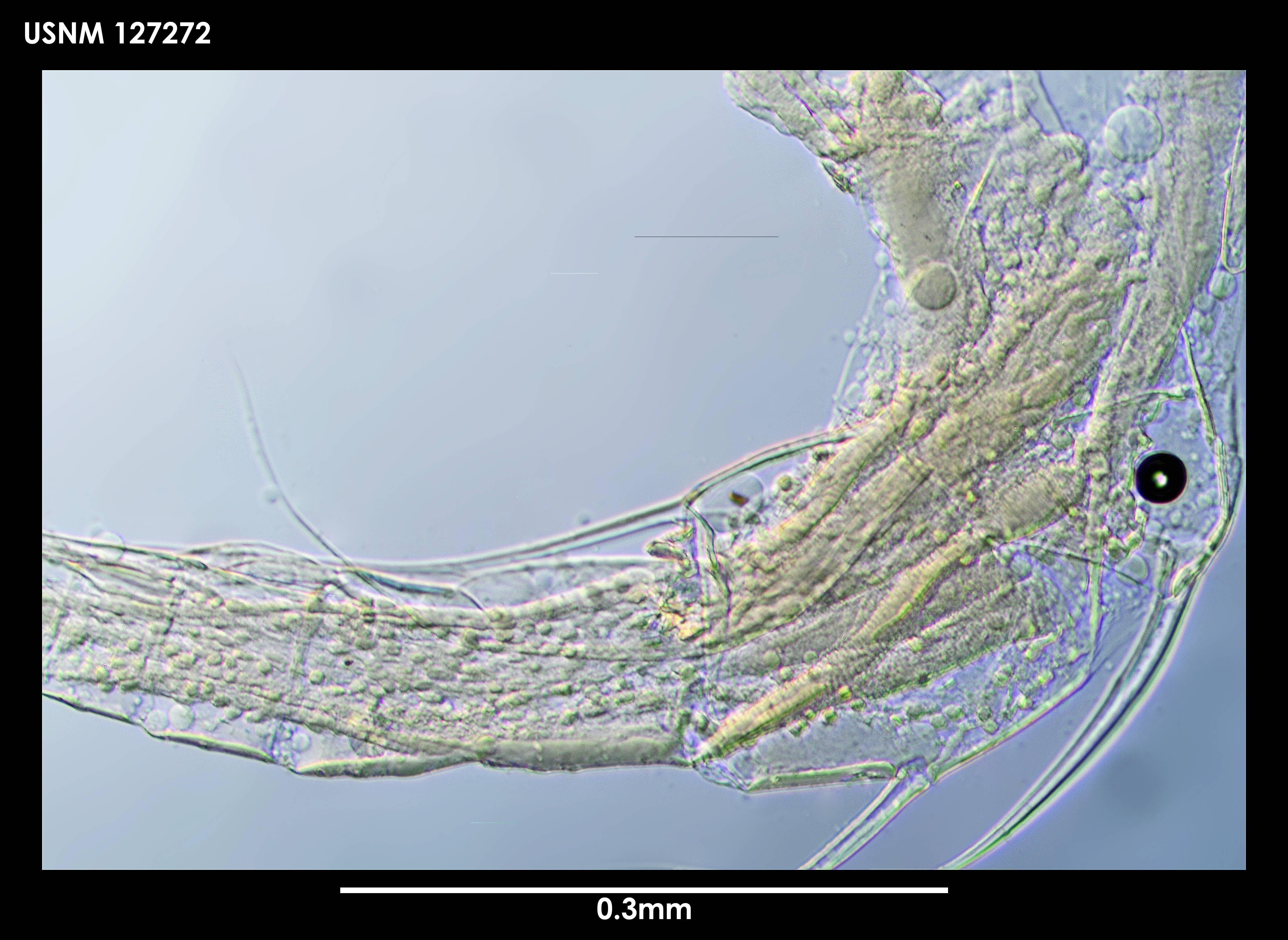 Image of <i>Thaumatoconcha radiata</i> Kornicker & Sohn 1976