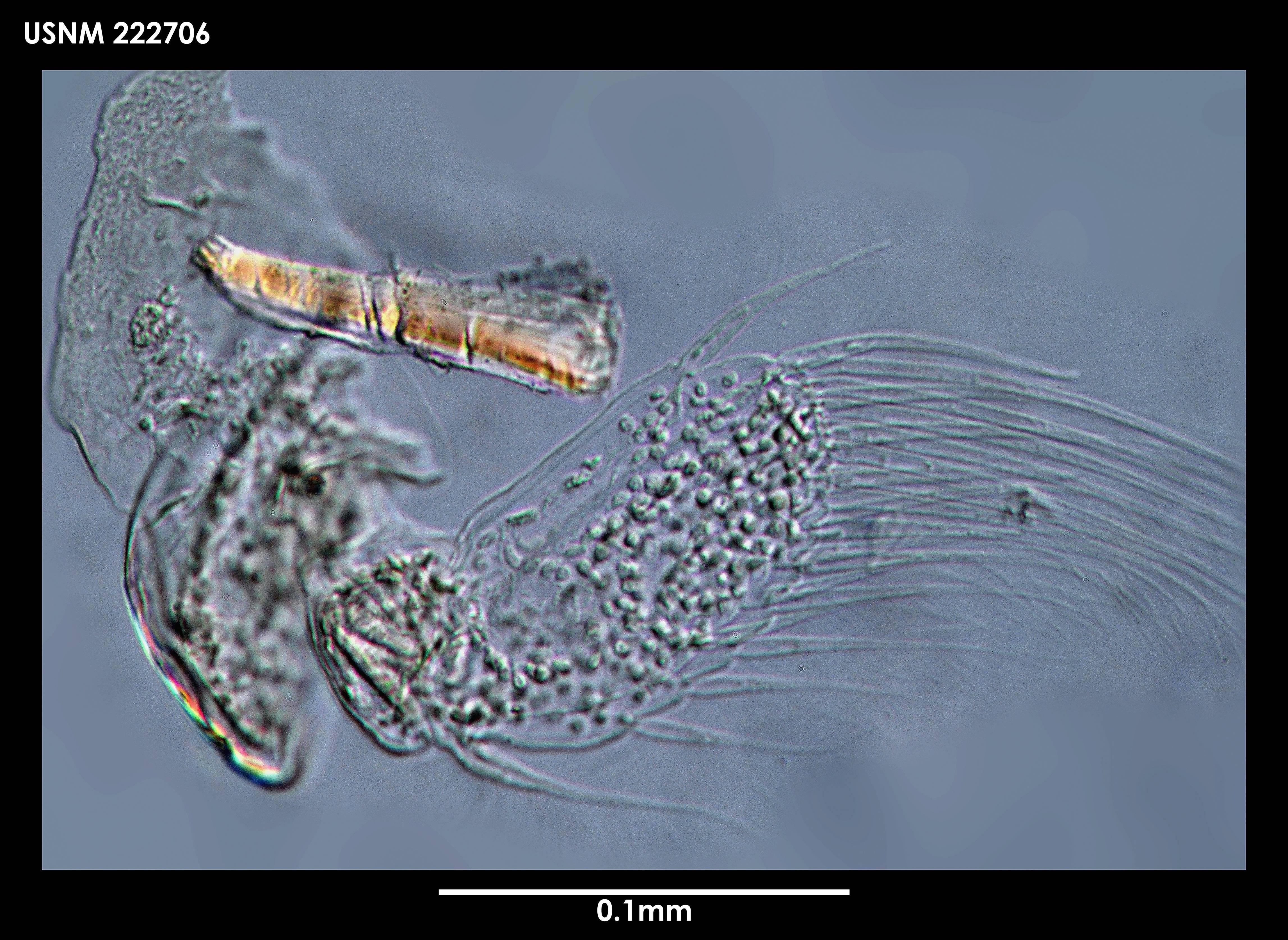 Image of <i>Arhaphuroides parabreviremis</i> Sieg 1986