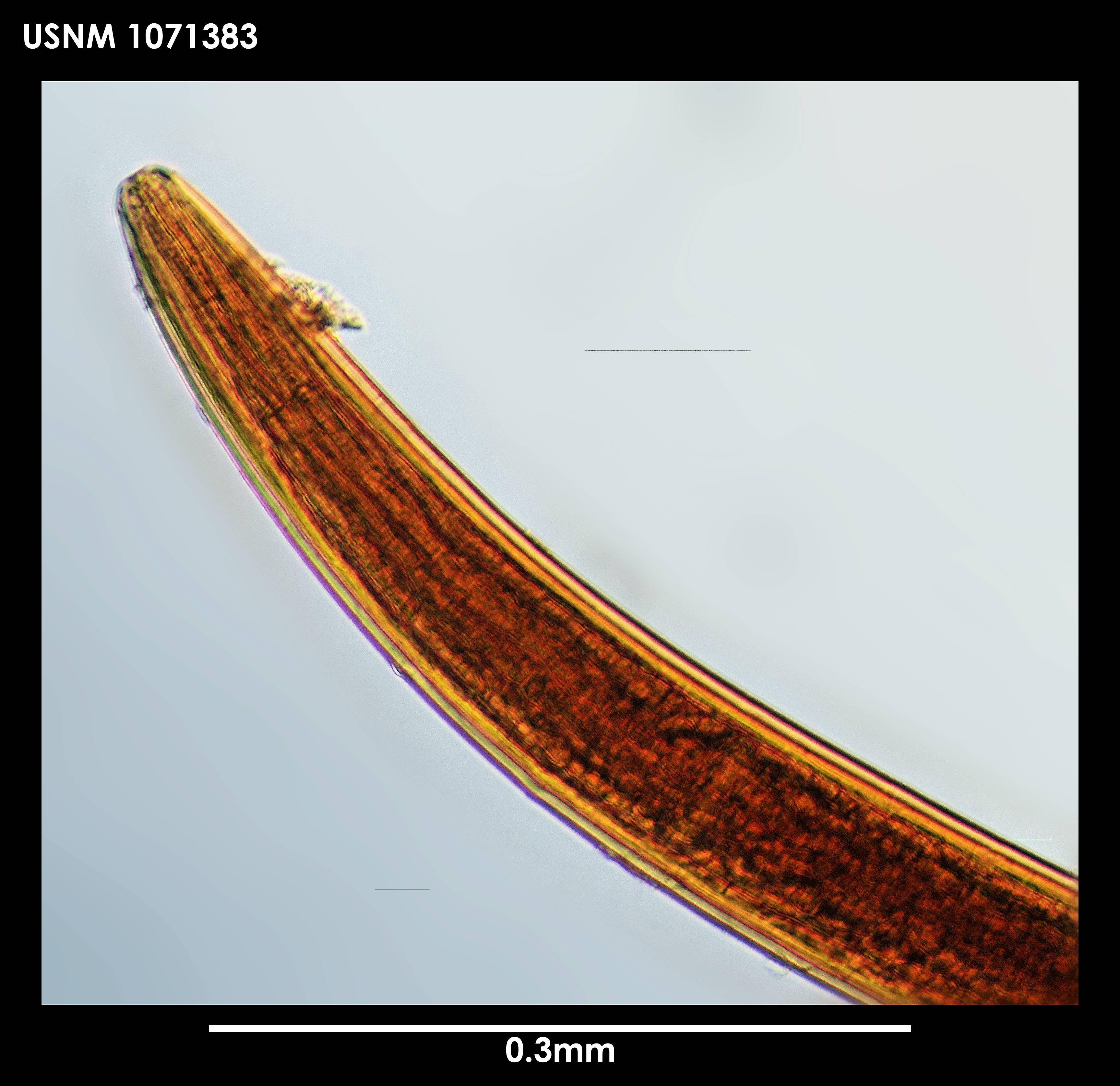 Image of <i>Leptosomatum bacillatum</i> (Eberth 1863)
