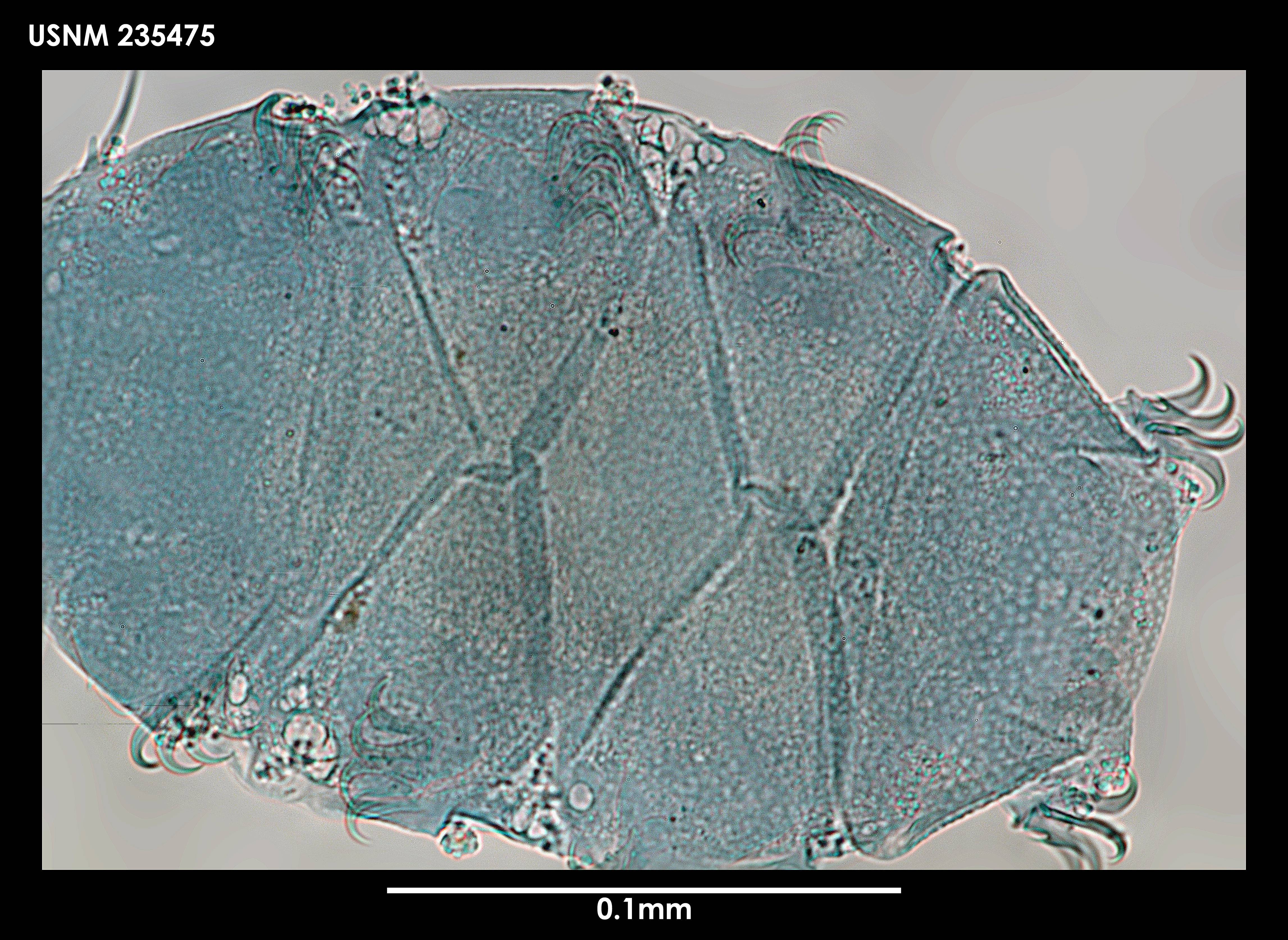Image of <i>Echiniscus capillatus</i> Ramazzotti 1956