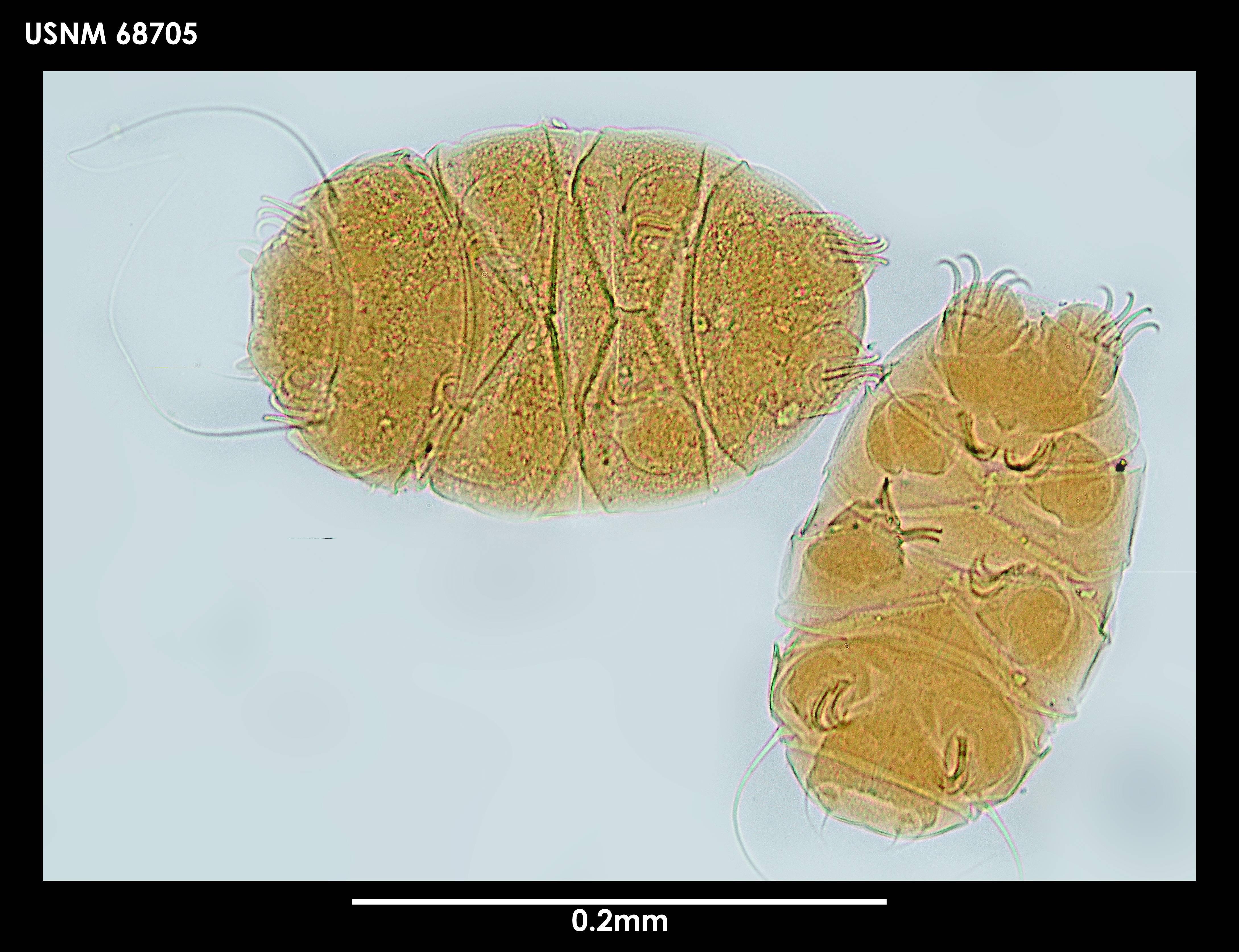 Image of <i>Echiniscus jenningsi</i> Dastych 1984