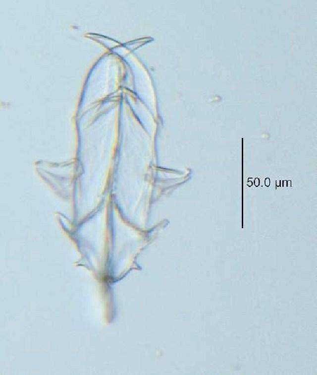 Image of <i>Asplanchna silvestrii</i> Daday 1902