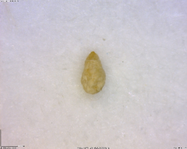Image of armored scale insects