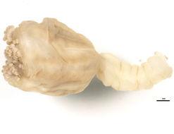 Image of horned stalked jellyfish