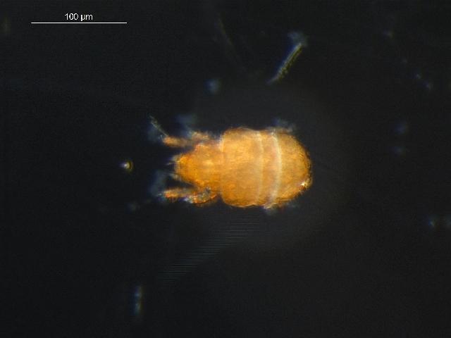 Image of <i><i>Liochthonius</i></i> (Liochthonius) <i>muscorum</i> Forsslund 1964