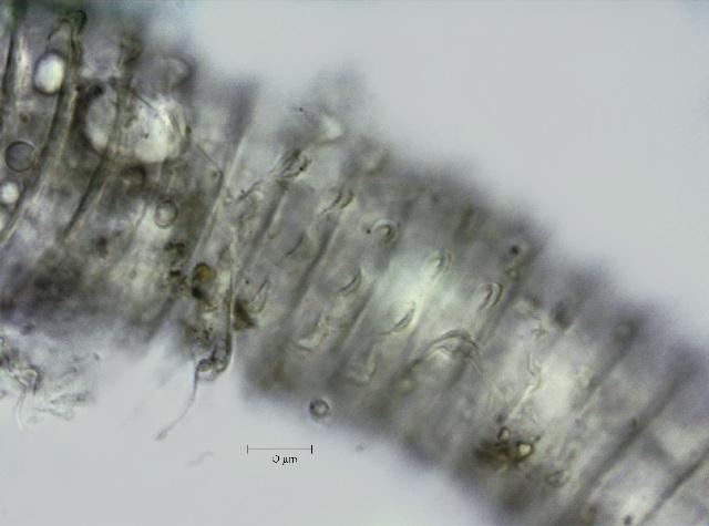 Image of <i>Lobocriconema incrassatum</i> Raski & Golden 1966