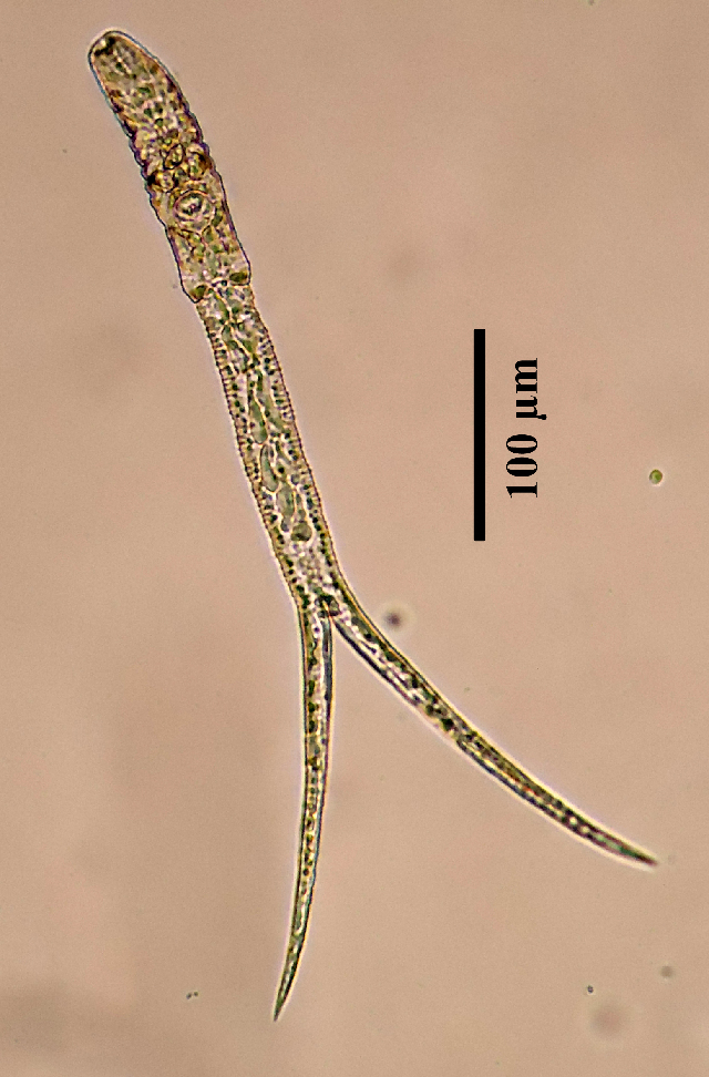 Image of Austrodiplostomum