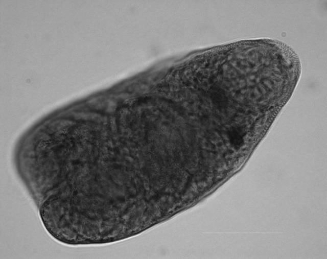 Image of <i>Apophallus microsoma</i> Ferguson, Locke, Font, Steinauer, Marcogliese & Coj