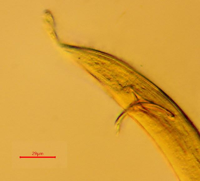 Image of Adenophorea