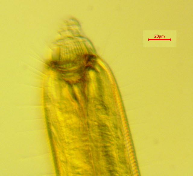 Image of Parasphaerolaimus