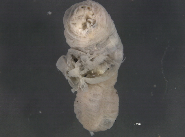 Image of penis worms