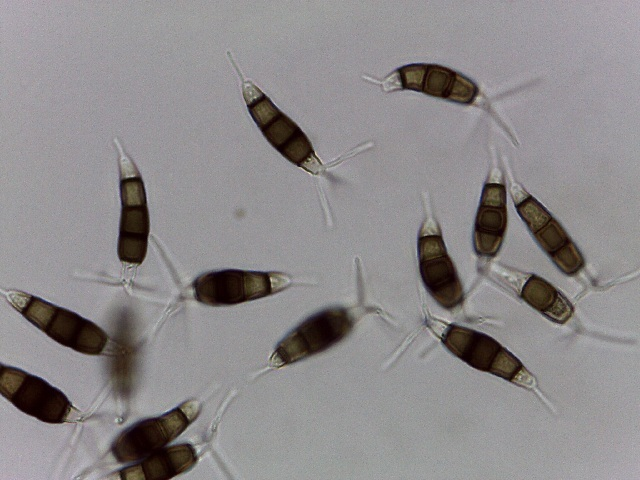 Image of Pestalotiopsis