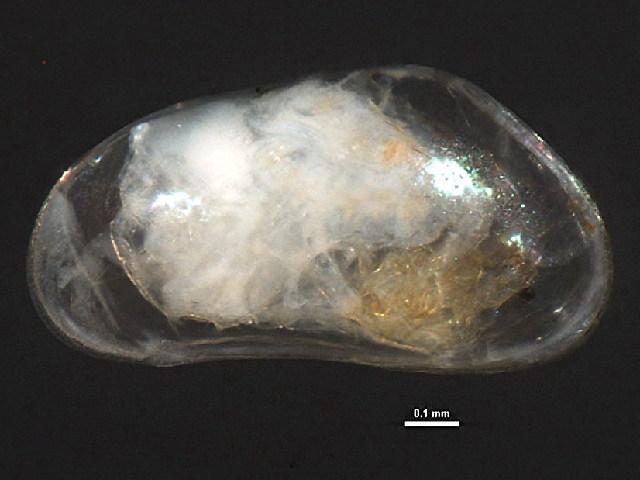 Image of <i>Pseudocandona</i>